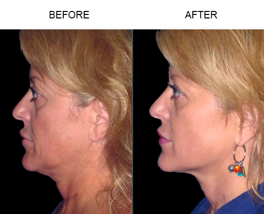 LazerLift™ Before And After