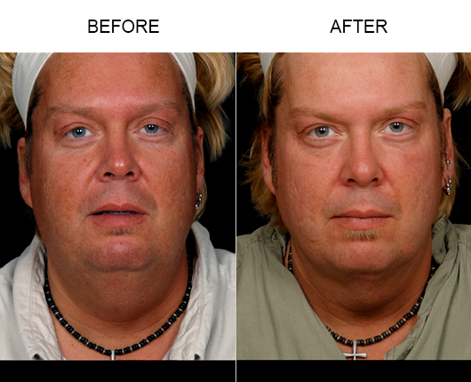 Before & After LazerLift™