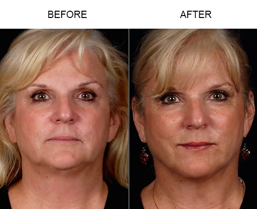 LazerLift Treatment Before And After