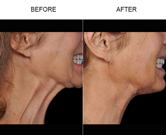 Thermirase® Before & After