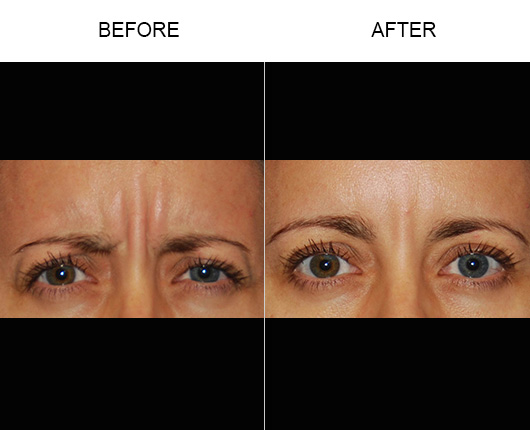 Before And After Thermirase®