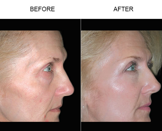 Cheek Lift Before & After