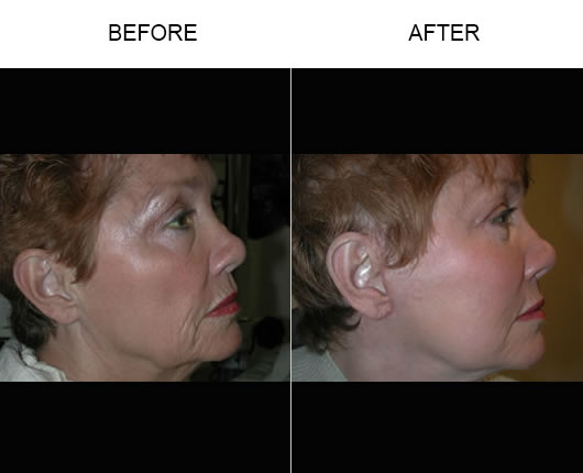 Before And After Cheek Lift