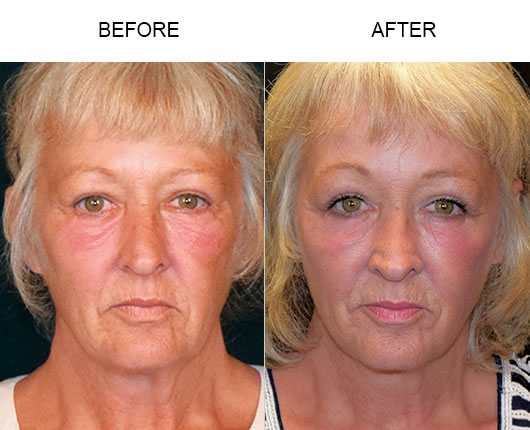 Before & After Cheek Lift