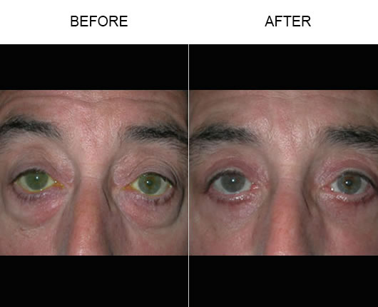 Eyelid Ptosis Treatment Before And After