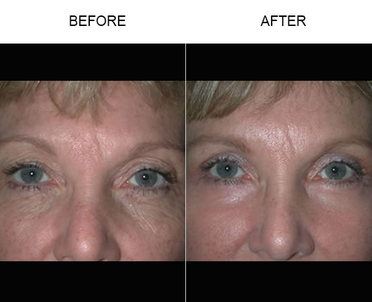 Eyelid Ptosis Treatment Before & After