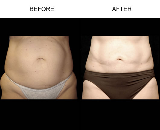 Aqualipo® Before And After
