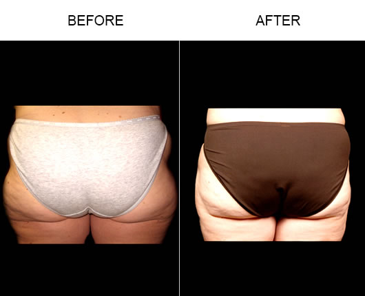 Before And After Aqualipo®