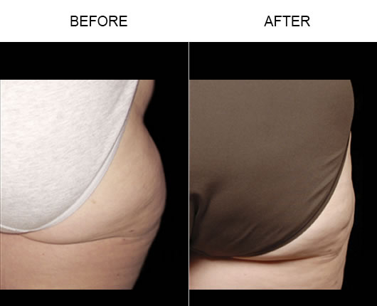 Before & After Aqualipo®
