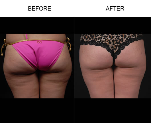 Aqualipo® Surgery Before And After