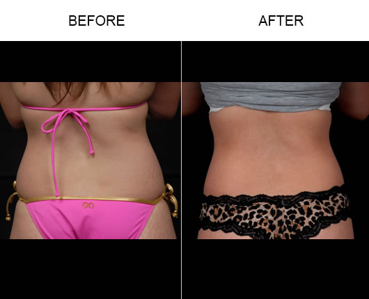 Aqualipo® Surgery Before & After