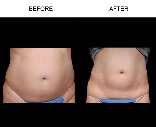 Before And After Aqualipo® Surgery