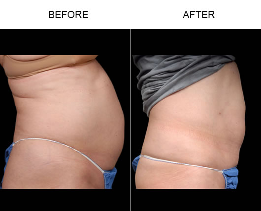 Before & After Aqualipo® Surgery