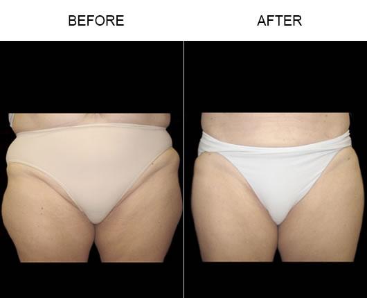Aqualipo® Surgery Results
