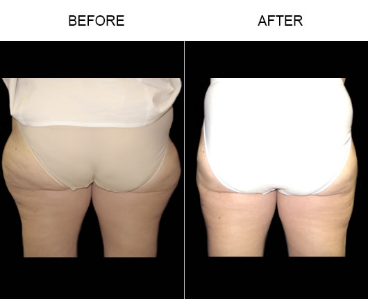 Aqualipo® Before And After Photo