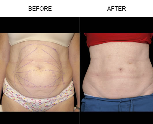 Aqualipo® Before & After Photo
