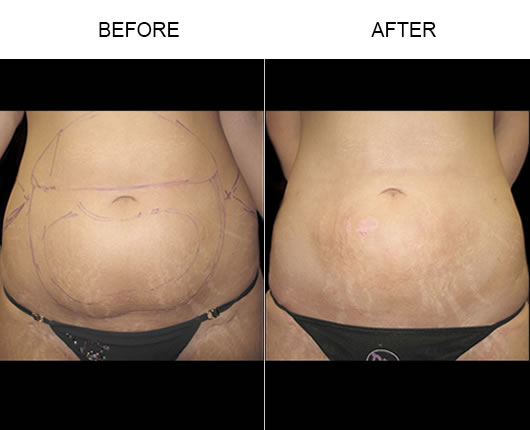 Aqualipo® Before And After Image