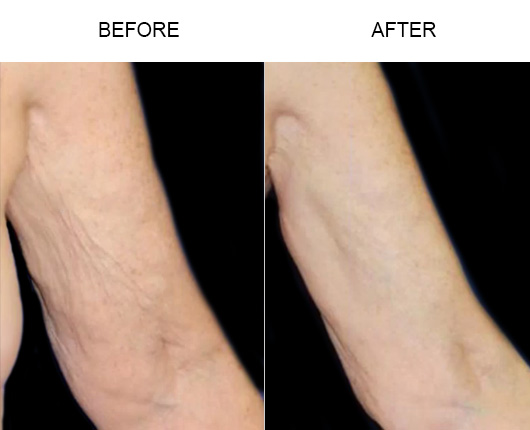Thermitight/BodyTite Treatment Before & After