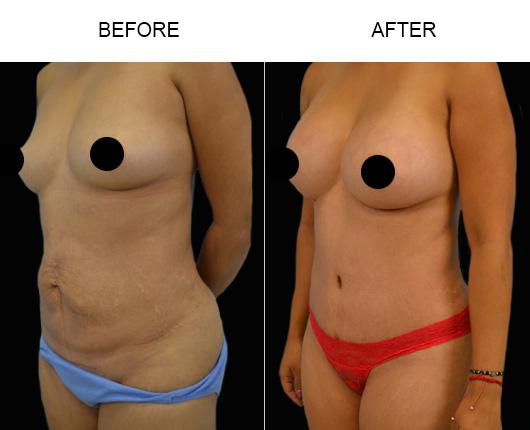 Tummy Tuck Results