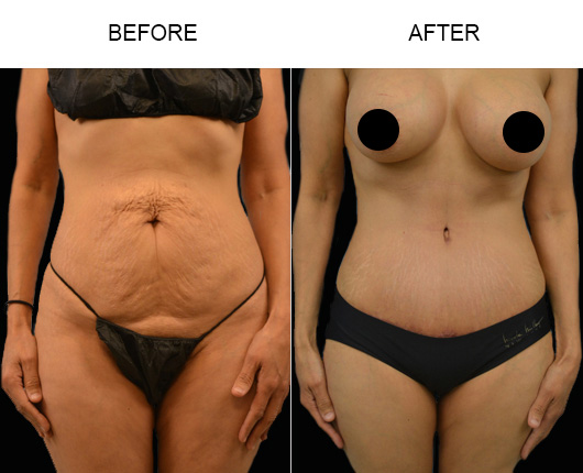 Tummy Tuck Surgery Before & After