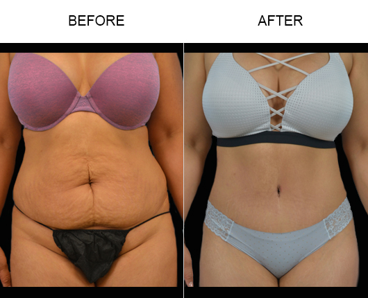 Tummy Tuck Surgery Results