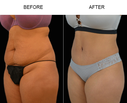 Tummy Tuck Treatment Before And After