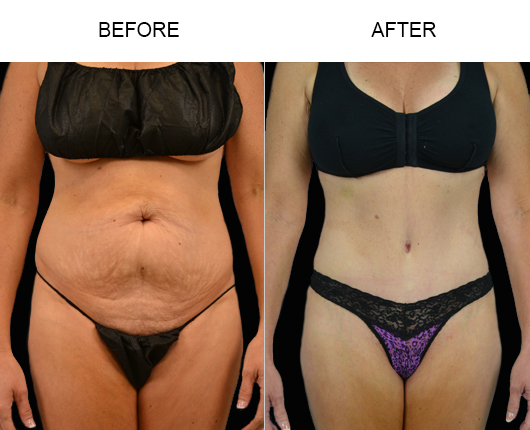 Before And After Tummy Tuck Treatment