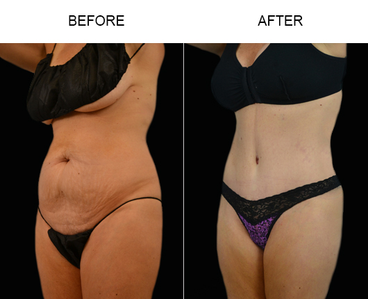 Before & After Tummy Tuck Treatment