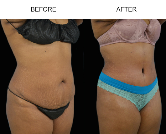 Before & After Tummy Tuck In Florida