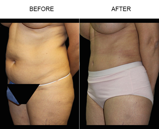 Florida Tummy Tuck Surgery Before And After