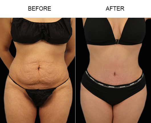 Florida Tummy Tuck Surgery Before & After