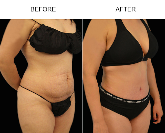 Before And After Tummy Tuck Surgery In Florida