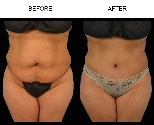 Before & After Tummy Tuck Surgery In Florida