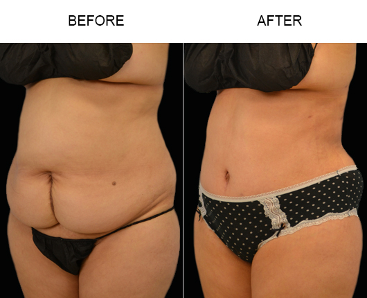 Florida Tummy Tuck Treatment Before & After