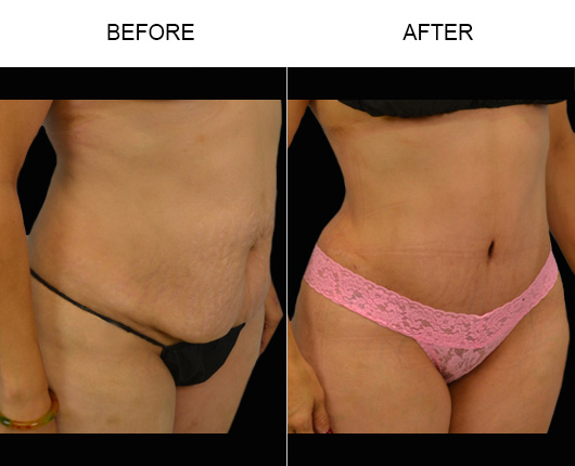 Before & After Tummy Tuck Treatment In Florida