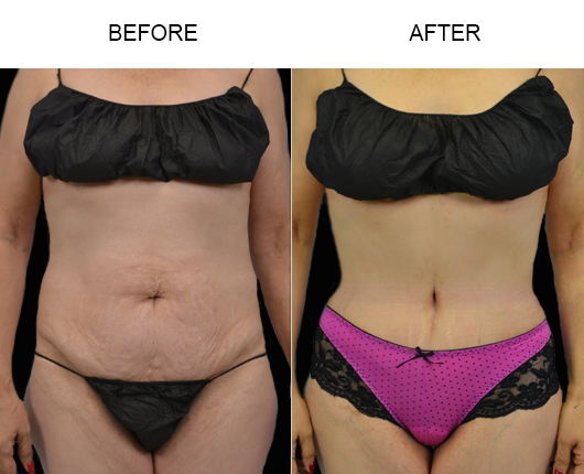 Abdominoplasty Before & After