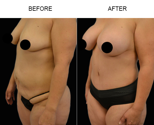 Abdominoplasty Surgery Before & After