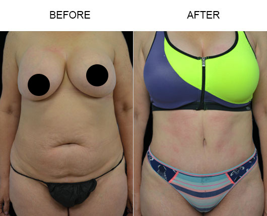 Abdominoplasty Surgery Results