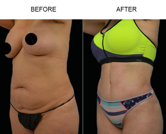 Abdominoplasty Treatment Before And After