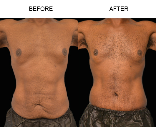 Abdominoplasty Treatment Before & After