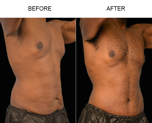 Before And After Abdominoplasty Treatment