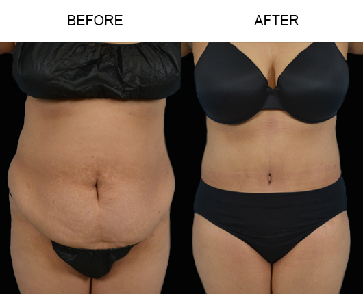 Before & After Abdominoplasty Treatment