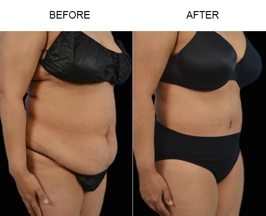 Abdominoplasty Treatment Results