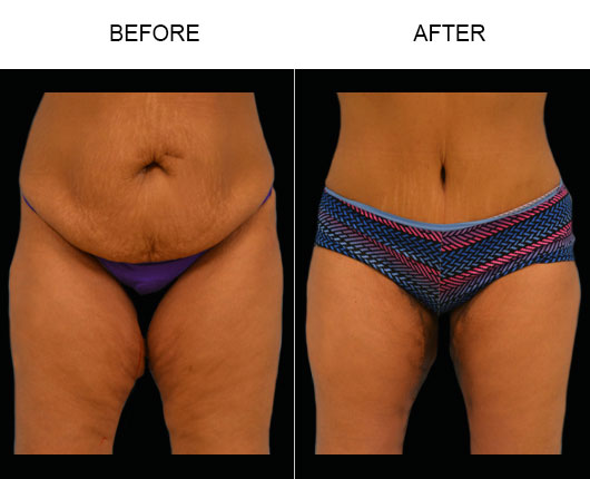 Florida Abdominoplasty Before And After