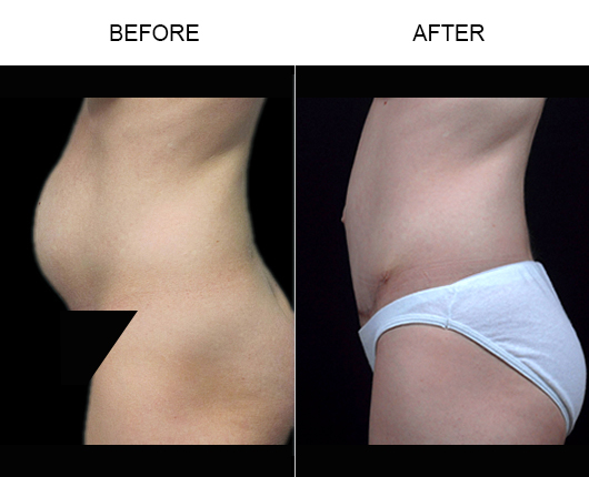 Florida Abdominoplasty Before & After