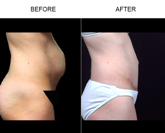 Before And After Abdominoplasty In Florida