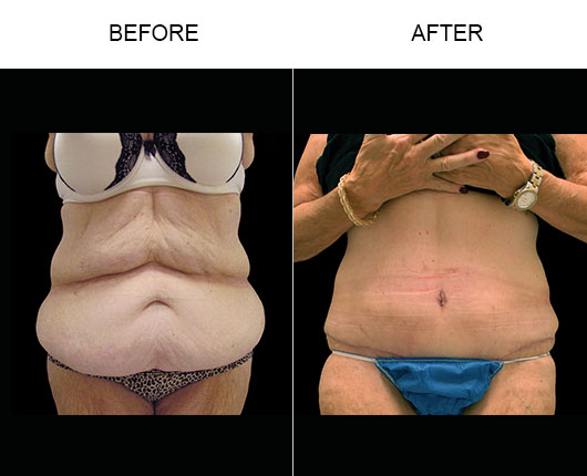 Before & After Abdominoplasty In Florida