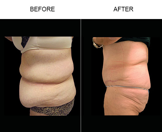 Florida Abdominoplasty Results
