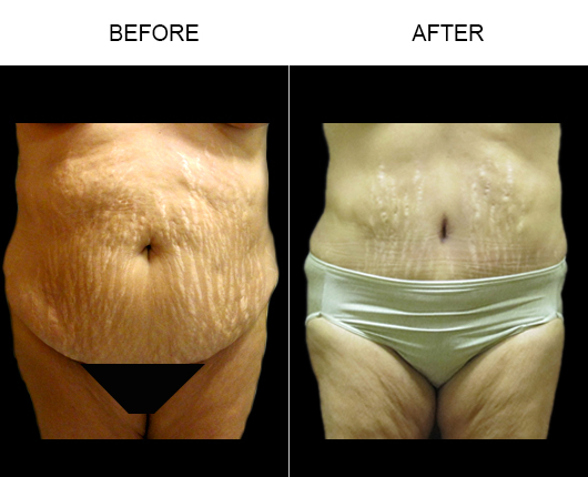 Florida Abdominoplasty Surgery Before And After