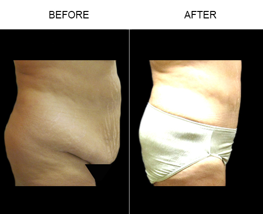 Florida Abdominoplasty Surgery Before & After